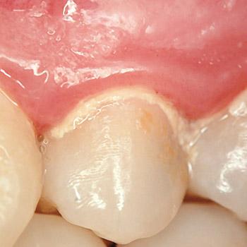 Causa: falta de cuidados na higiene oral